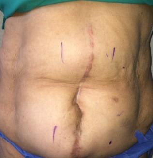 Paciente tratada por CITHA, con hernia incisional gigante secundaria a cirugía previa por trauma abdominal.