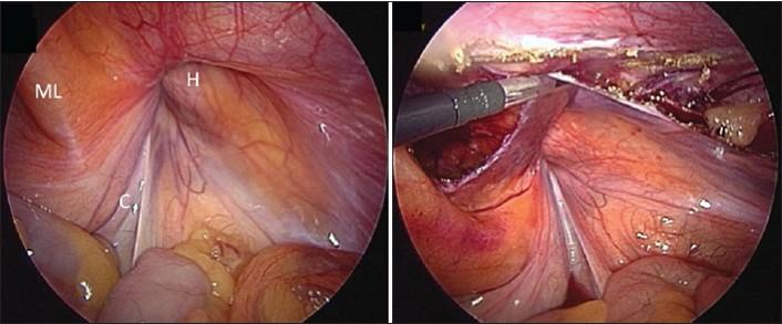 Reparación de Hernia inguinal vía laparoscópica